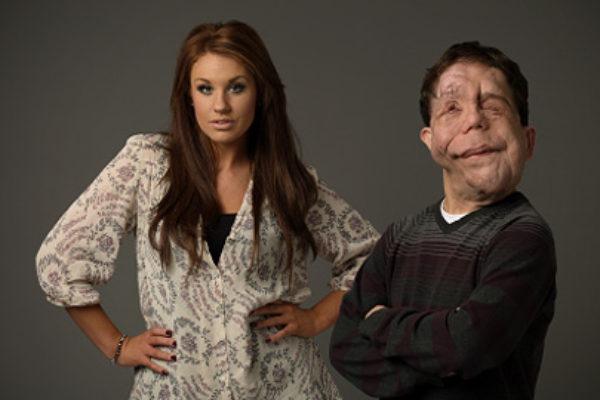 Jedni z uczestników reality show Beauty and the Beast | fot. Channel 4