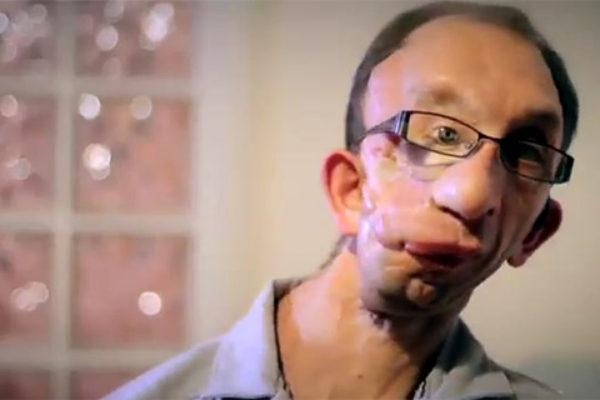 Brytyjska stacja pokaże nowy reality show pt. The Undateables | fot. Channel 4